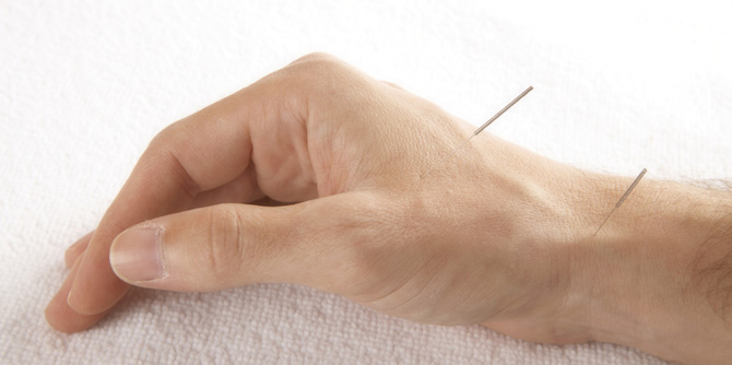 accupuncture-hand